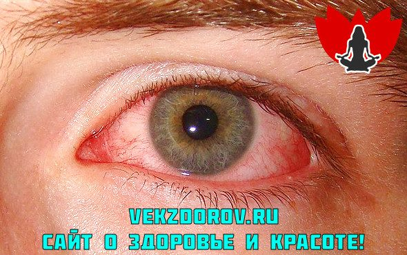 Причины и симптомы сухости глаз!