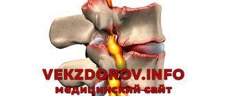 Ишиалгия, или воспаление седалищного нерва, симптомы и принципы лечения заболевания