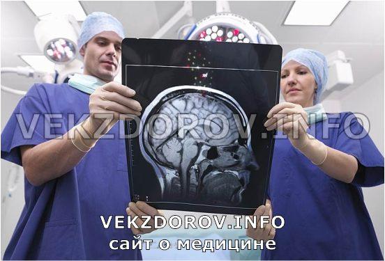 диагностика склероза по мрт
