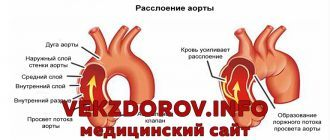 Причины развития аневризмы аорты, ее симптомы, диагностика, лечение и осложнения