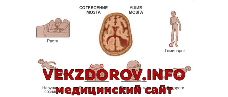 Принципы лечения сотрясения головного мозга у взрослых
