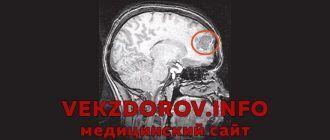 Симптомы, диагностика и лечение аневризмы головного мозга