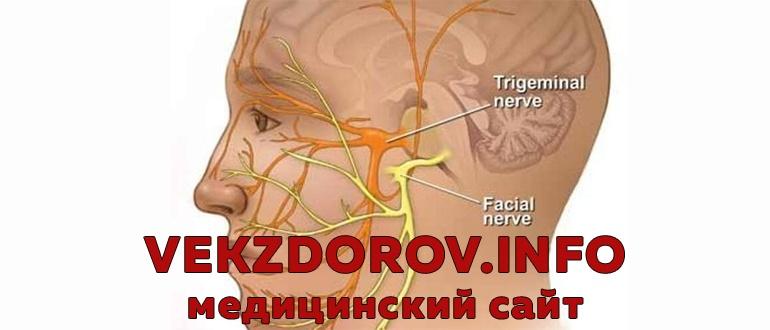 Симптомы и лечение невралгии (воспаления) тройничного нерва