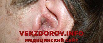 Симптомы неврита (воспаления) лицевого нерва, или паралич Белла
