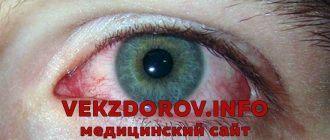 Сухость глаз. Причины возникновения, диагностика и лечение.