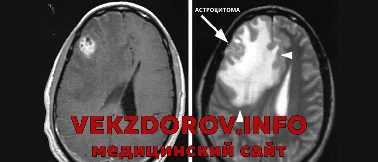 Астроцитома головного мозга: что это такое и как ее лечить?