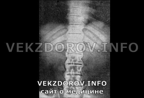 болезнь Бехтерева на снимке