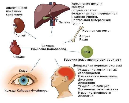 bolezn_vilsona_konovalova