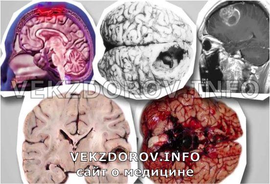 больной мозг в разрезе