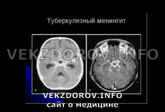 туберкулезный менингит на снимке