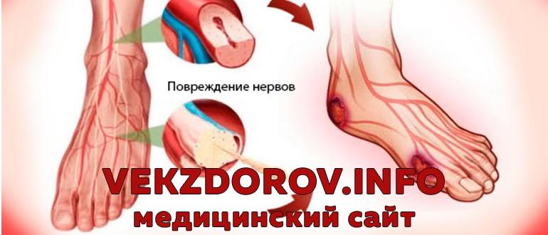 Лечение диабетической и алкогольной полинейропатии нижних конечностей
