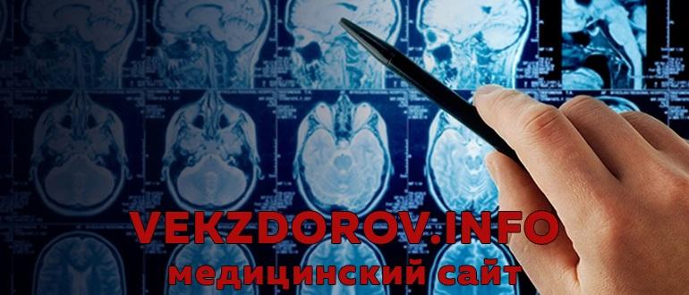 О продолжительности жизни с новообразованиями (опухолями) головного мозга