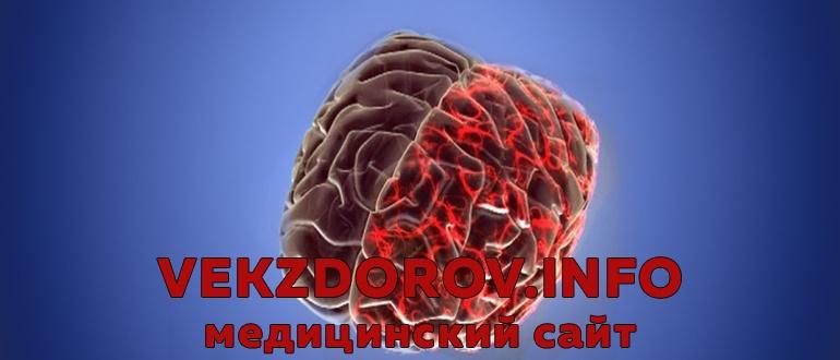 Причины, симптомы и лечение спазма сосудов головного мозга
