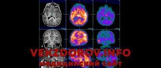 Причины возникновения и симптомы эпилепсии у детей и взрослых