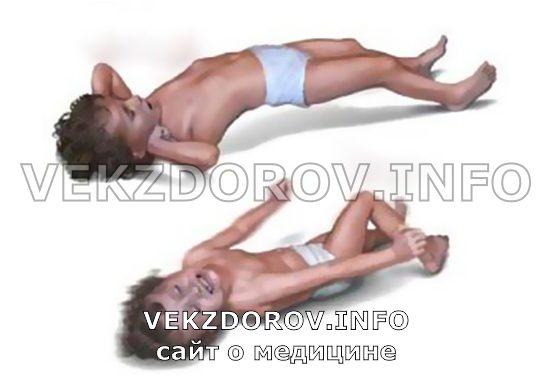 эпилептический припадок у ребенка