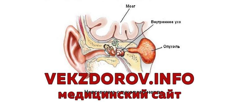 Признаки, диагностика и принципы лечения невриномы слухового нерва