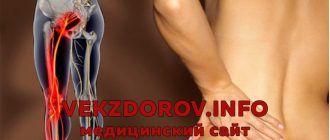 Признаки и лечение острой и хронической ишиалгии, или защемления седалищного нерва