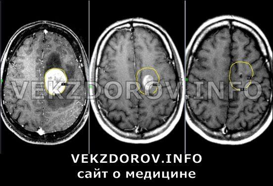 метостази головного мозга