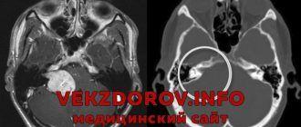 Симптомы и лечение неврита и невриномы слухового нерва