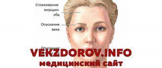 Симптомы воспаления лицевого нерва и его лечение в домашних условиях