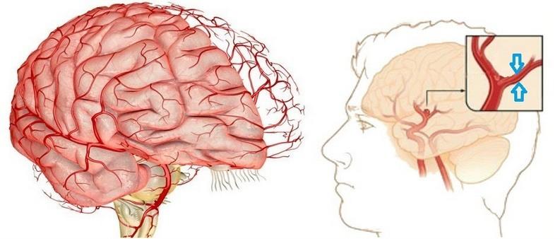спазм сосудов мозга