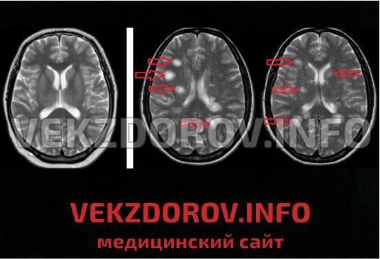 сколько длится обострение при рассеянном склерозе объявления