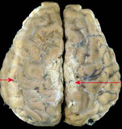 tuberkulezny_meningit