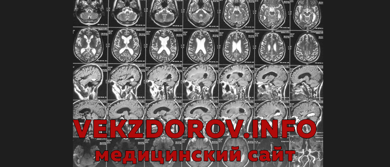 Все о проведении МРТ (магнитно-резонансной томографии) головного мозга