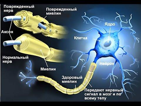 Под «масками» каких заболеваний протекает рассеянный склероз?