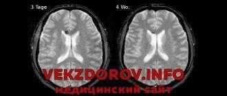 Диффузное аксональное повреждение мозга – что это такое?