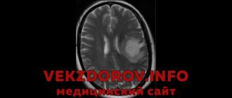 Какие демиелинизирующие заболевания известны, кроме рассеянного склероза?