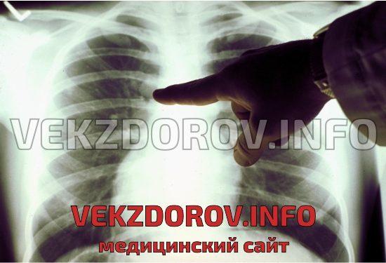рентгенография болезни