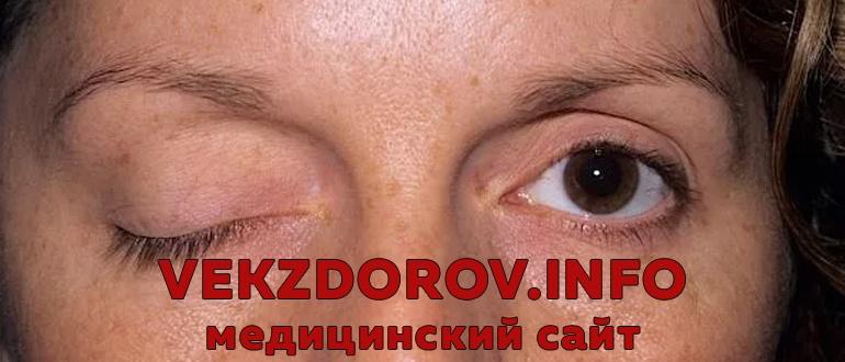Миастения гравис и миастеноподобные синдромы, их клиника и лечение