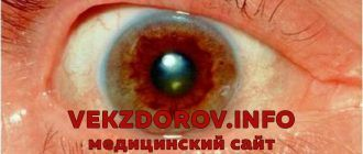 Причины, симптомы и лечение болезни Вильсона – Коновалова, или гепатоцеребральной дистрофии