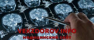 Ушиб мозга: клиника, классификация, диагностика, лечение, прогноз
