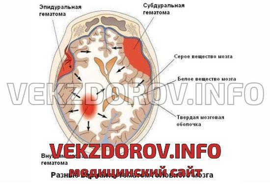 варианты гематом головного мозга